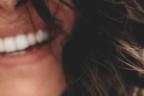 Primer plano de la sonrisa de una mujer.